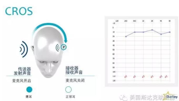 斯达克妙系列助听器(MUSE)专业调试小技巧-CROS/BiCROS